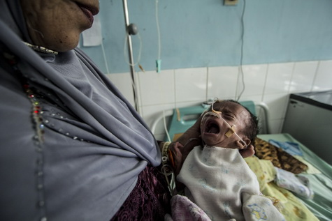 Peduli Fahmi, bayi penderita gizi buruk asal Nisam Antara / Reza Juanda (Acehkita.com)